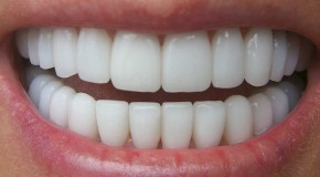 """Adio implanturi dentare! În scurt timp vom înlocui dinţii lipsă cu """"biodinţi"""" noi, care vor creşte direct în gura pacienţilor!"""